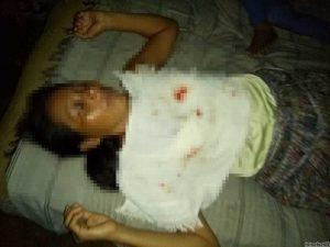 Mujer agredida en comunidad Nuevo San Miguelito